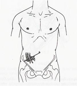 жедел аппендицит