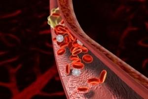 Магистральді артерия тромбозы және эмболиясы