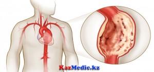 Аорта аневризмасы