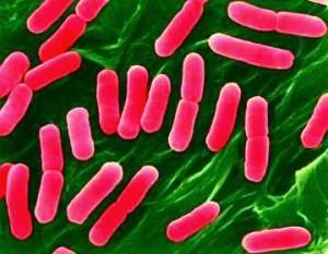 Ішек инфекциясы