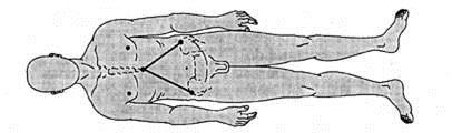 жамбас сынығы кезіндегі ассиметрииялық