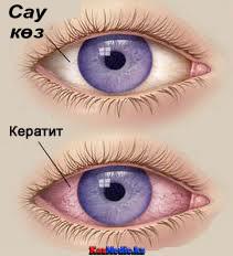 кератит қазақша