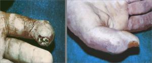 іріңді тендовагинит