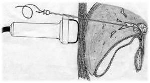 холангиостомия қою