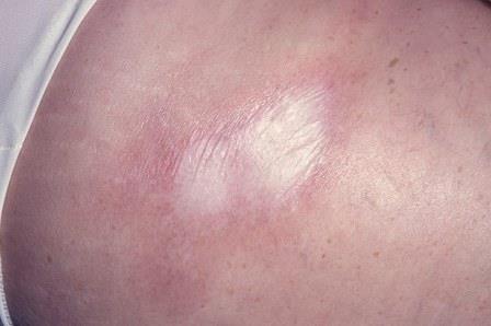 склеродермия кезіндегі тыртық