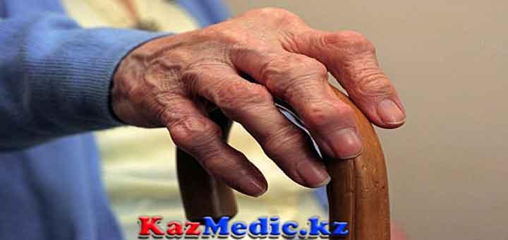 ревматоидты артрит