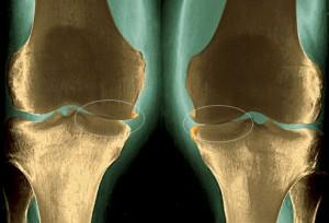 остеоартроз қазақша