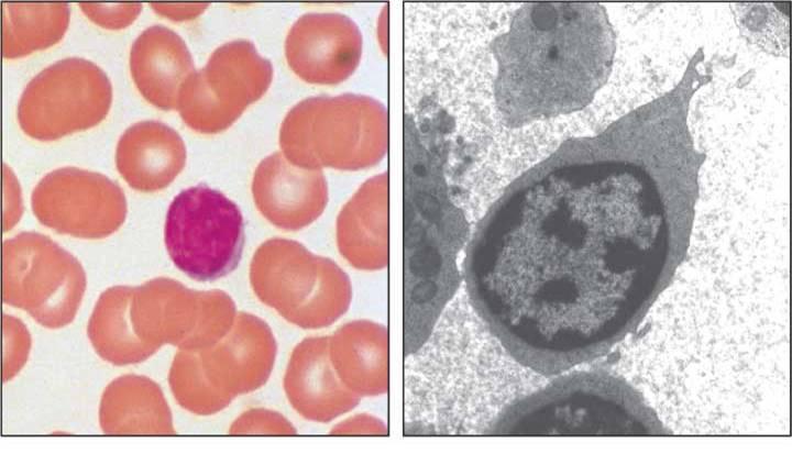 лимфоцит қазақша