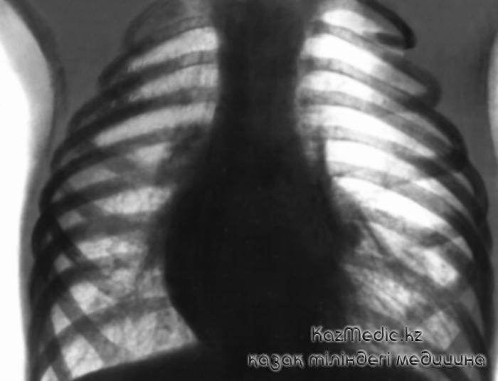 өкпе эмфиземасы рентген