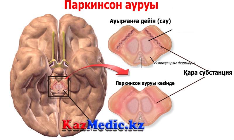 Паркинсон ауруы
