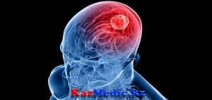 герпесті менингит энцефалит