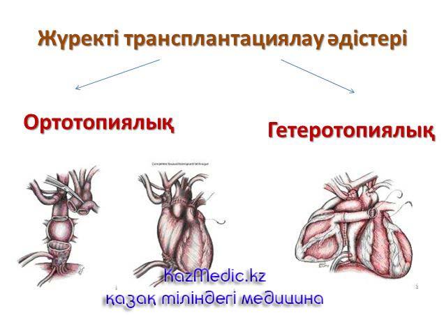 Жүрек трансплантациясы