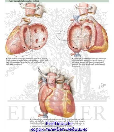 органдарды алмастыру