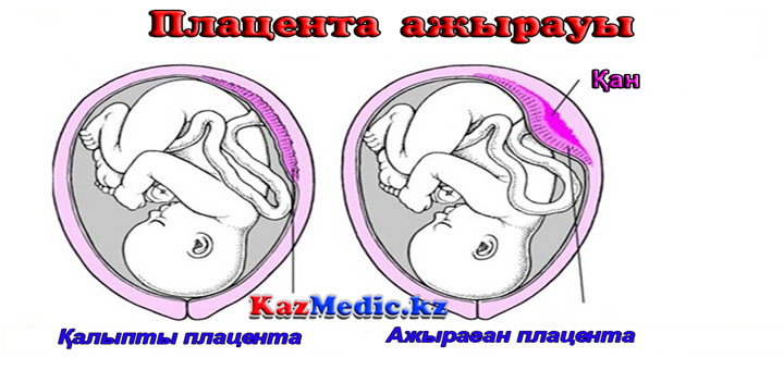 ҚОПУБА плацента ажырауы