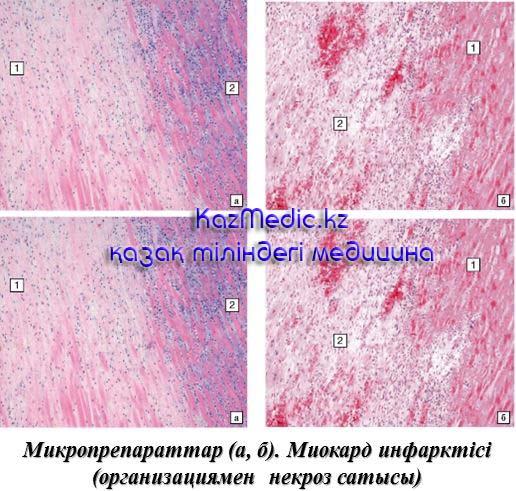 Миокард инфарктісі микроскопия