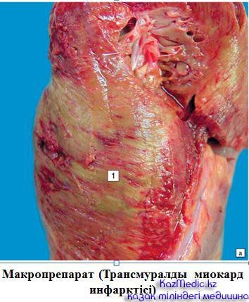 Трансмуралды миокард инфарктісі