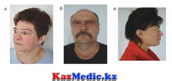 Эндокринді офтальмопатия