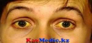 Сарғаю синдромының ажырату диагностикасы