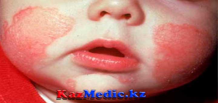 Геморрагиялық васкулит