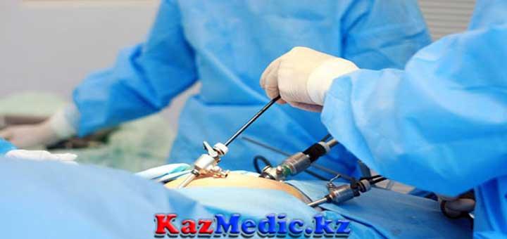 лапораскопиялық операция