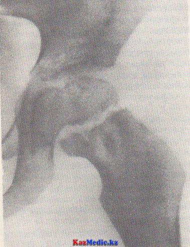 сүйек буын туберкулезі