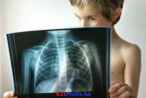 Балалардағы пневмония ауруы