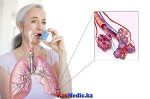 Бронх астмасының жедел көмегі