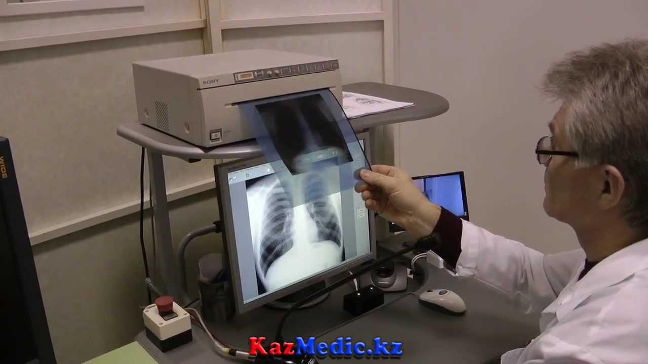 Флюрография қазақша