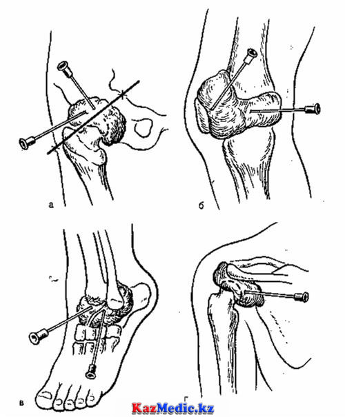 Іріңді артрит