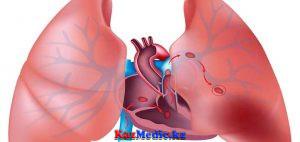 Өкпе артериясының тромбоэмболиясы (ӨАТЭ)