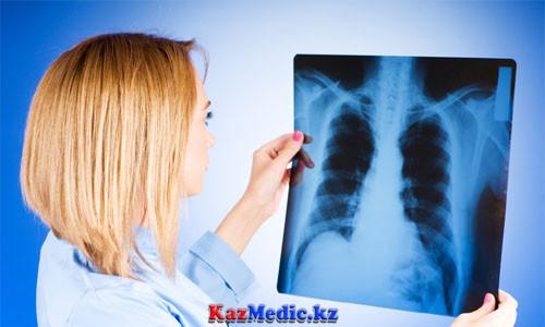 Туберкулезді ерте анықтау жолдары