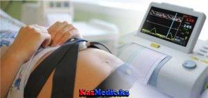 Жүктілік кезіндегі кардиотокография