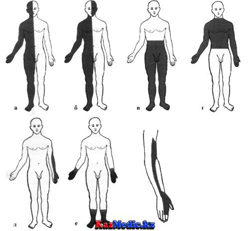 Күрделі сезімталдықты анықтау