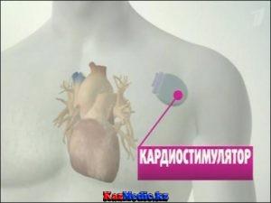 Жүрек кардиостимуляторы