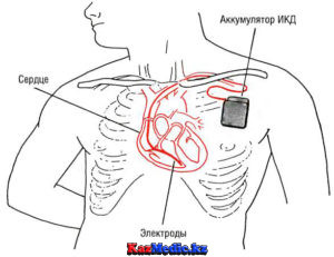 Имплантацияланатын кардиовертер дефибриллятор (ИКД)