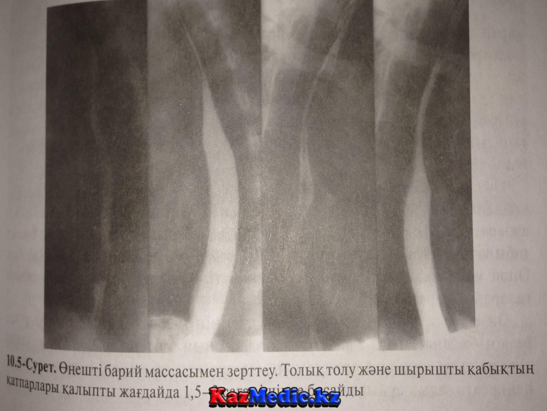 өңеш рентгенанатомиясы
