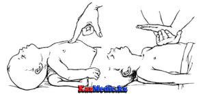 Бала жүрегіне жасанды массаж жасау