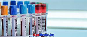 биохимилық қан анализі