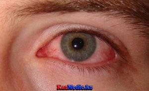 Құрғақ көз синдромы