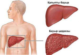 бауыр циррозы