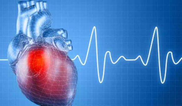 оң жақтық миокард инфарктісі