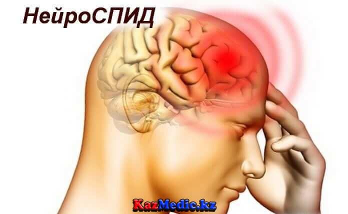 Нейроспид казакша реферат
