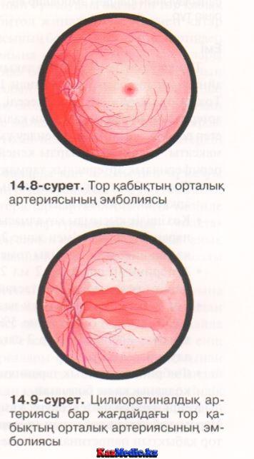 қабат орталық артерия эмболиясы