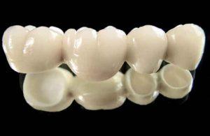 Стоматологиядағы протездер