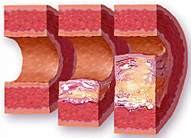 атеросклероз қазақша