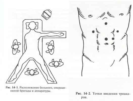 лапароскопиялық операция қазақша