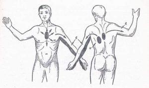 Жүректің ишемиялық ауруы (ЖИА)