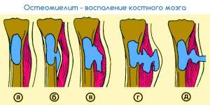 Жедел гематогенді (қан арқылы) остеомиелит