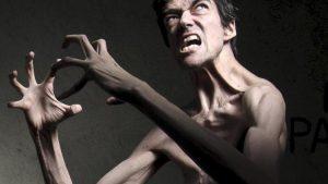 Марфан синдромы