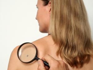 Эпителийден және дәнекертіндерден өсетін қатерсіз ісіктер, диагностикасы, емдеу жолдары.
